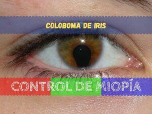 Banner - Coloboma de Iris