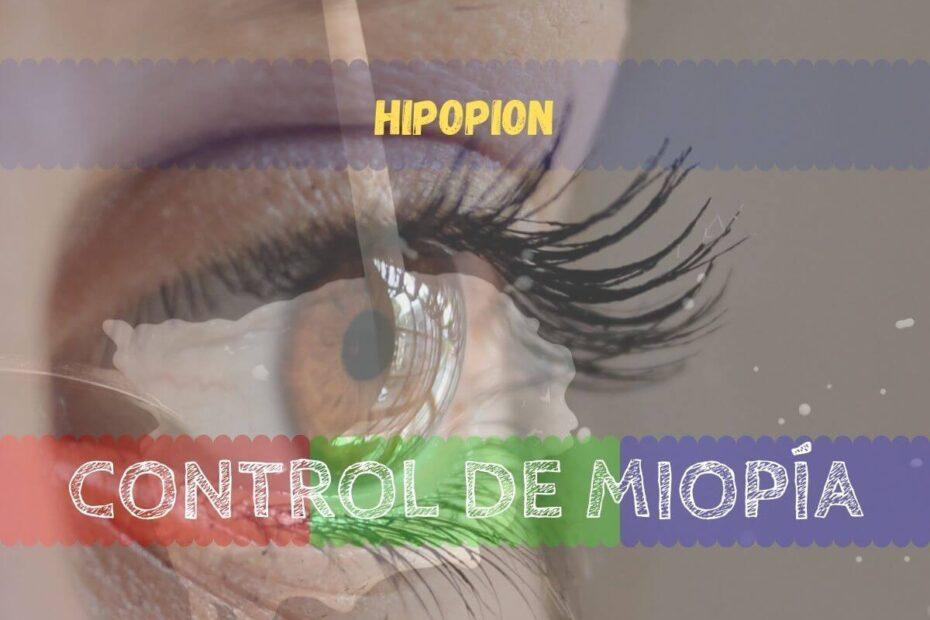 Banner - Hipopion