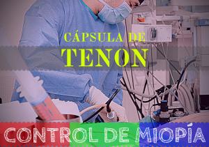 banner capsula de Tenon