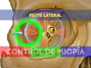 Banner - Recto lateral
