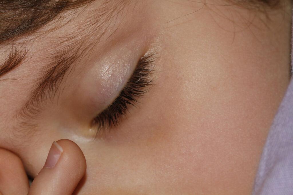 Métodos de control de miopía como el Orto-k están siendo utilizados por los profesionales para evitar el aumento de graduación en niños.