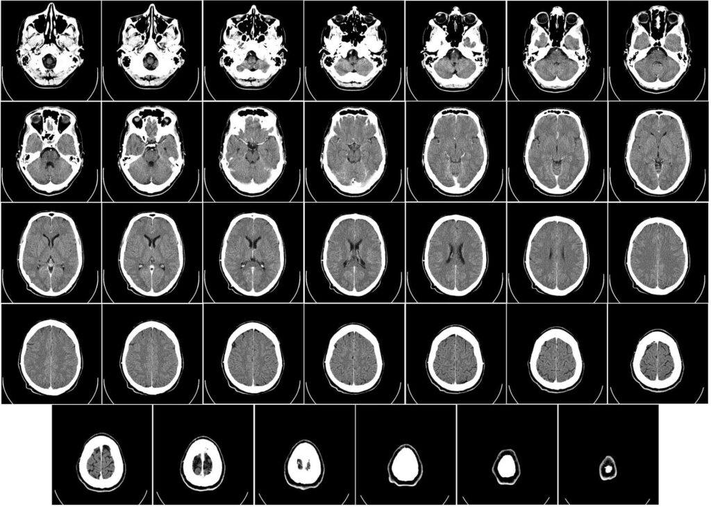 La Tomografía computerizada es una prueba habitual en la que se pueden observar  los músculos extraoculares, entre ellos el oblicuo inferior del ojo