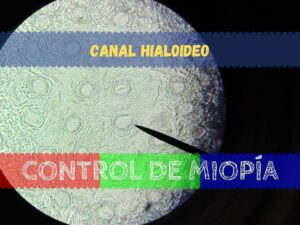 Banner - Canal Hialoideo
