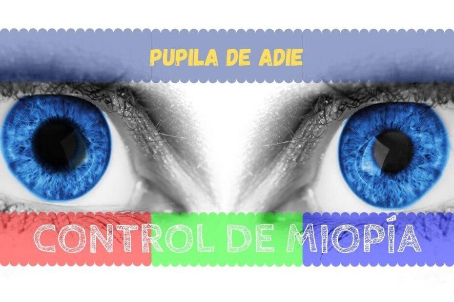 ¿Qué es la Pupila de Adie? 1